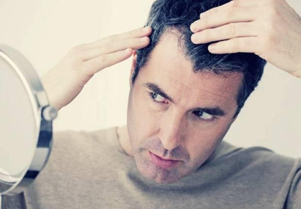 استرس سفیدی مو