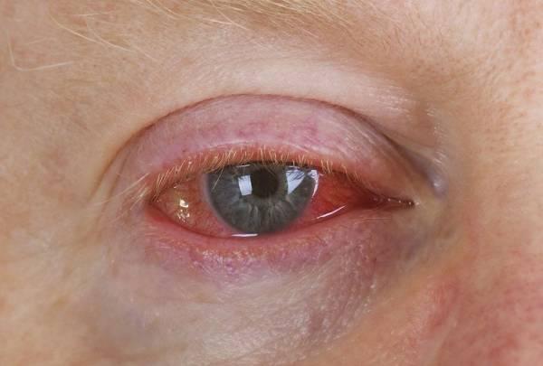 رایج ترین آسیب های چشمی و راه حل هرکدام