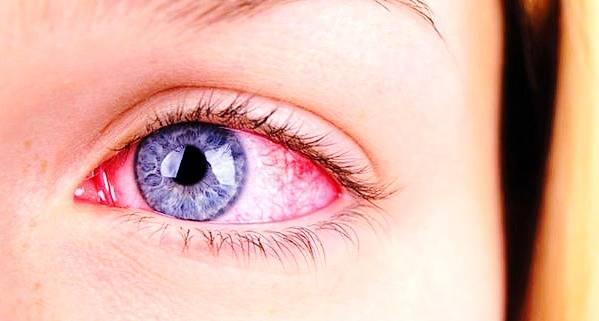 آنتروپیون چیست که زیبایی چشم ها را نابود می کند؟