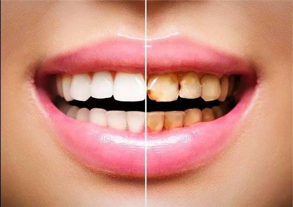 نقص مینای دندان
