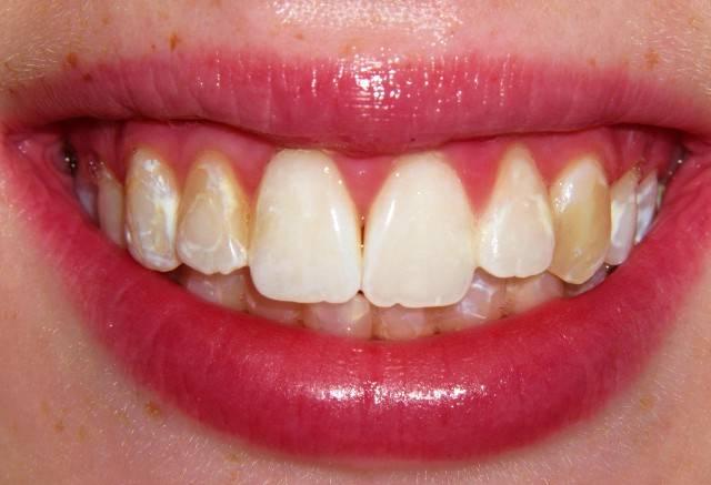 از کجا بفهمیم دندانمان هیپوپلازی مینا دارد؟