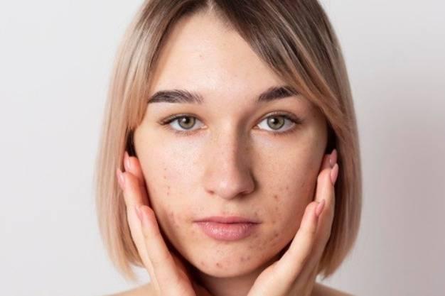 کاهش اسکار پوست