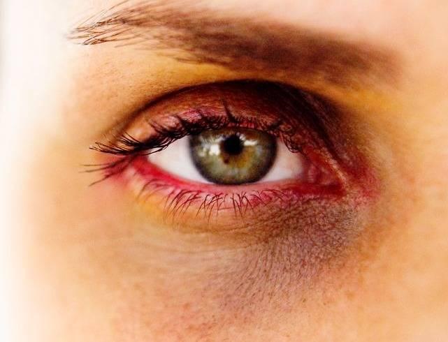 کبودی دور چشم