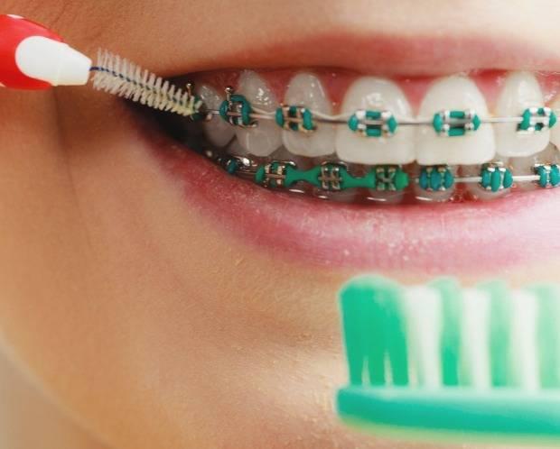 چگونگی مسواک زدن دندانهای ارتودنسی شده